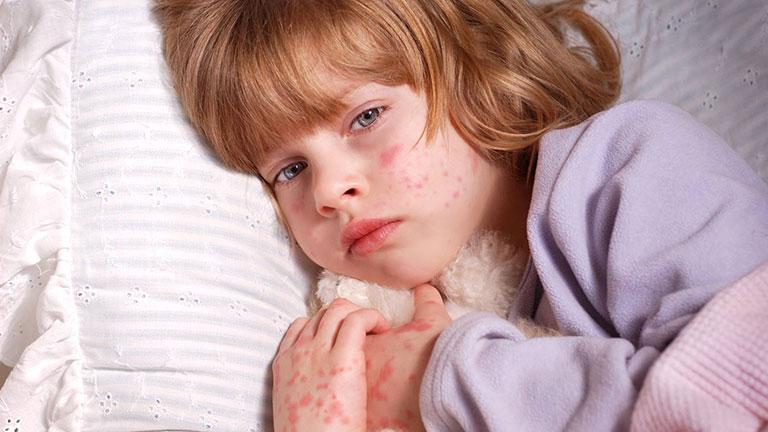 cách chữa bệnh nổi mề đay ở trẻ em