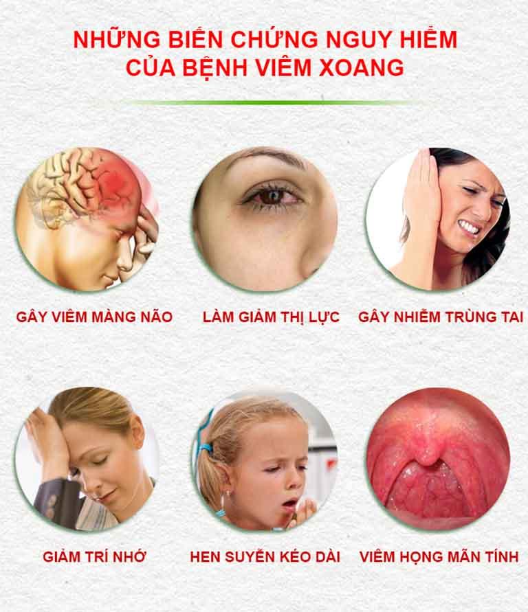 Các biến chứng nguy hiểm do bệnh viêm xoang gây ra
