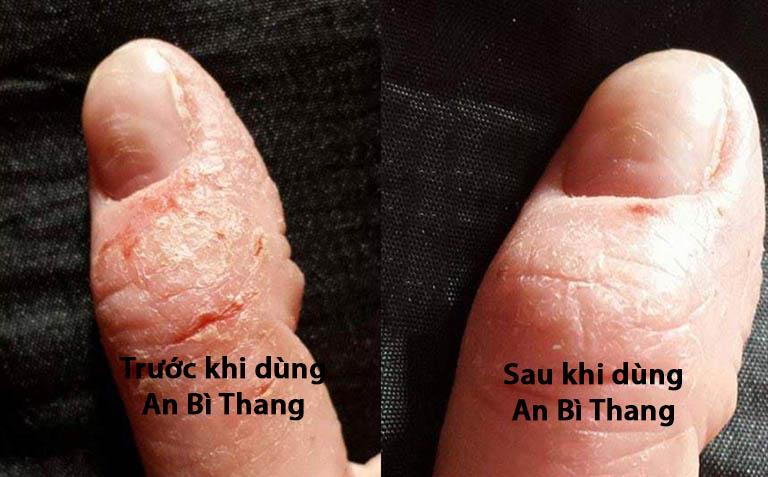 Hiệu quả sử dụng bài thuốc An Bì Thang (Ảnh: NVCC)
