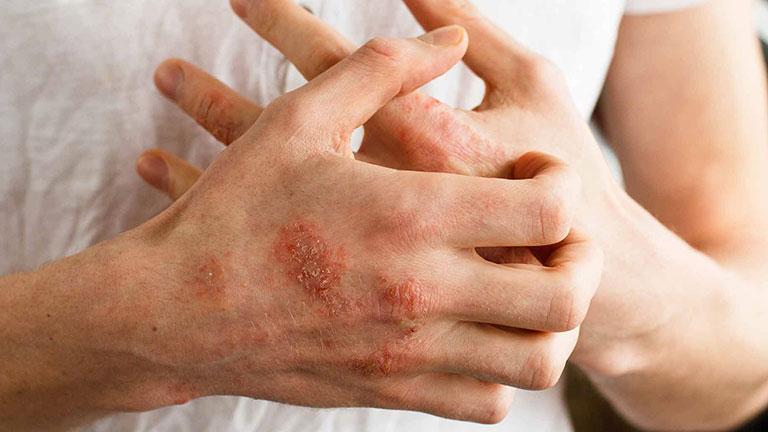 các loại bệnh chàm