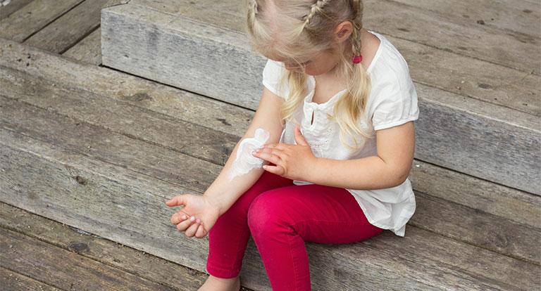 Mẹo chữa chàm ở trẻ em