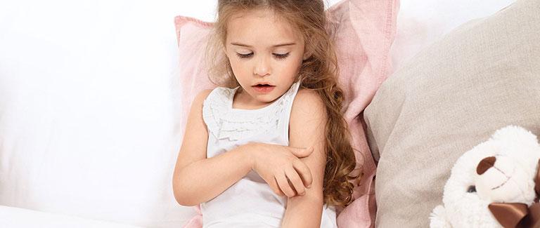 Trẻ sơ sinh bị chàm