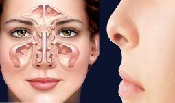 Viêm xoang gây ra nhiều triệu chứng khó chịu làm ảnh hưởng nghiêm trọng tới sức khỏe