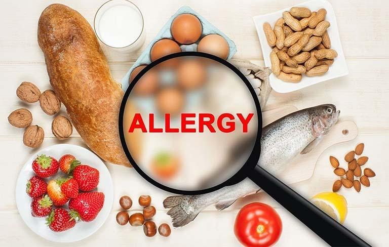 Nguyên nhân gây ra bệnh chàm ở mặt - Dị ứng với thực phẩm