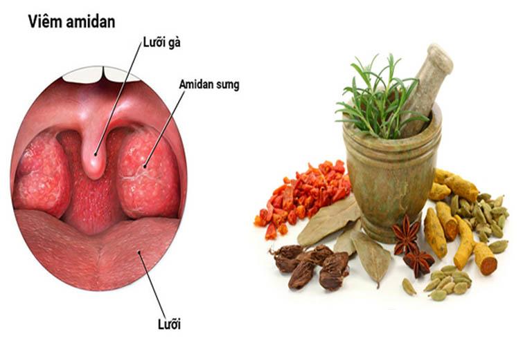 Cách chữa viêm amidan bằng thảo dược từ lâu được đánh giá là an toàn, lành tính