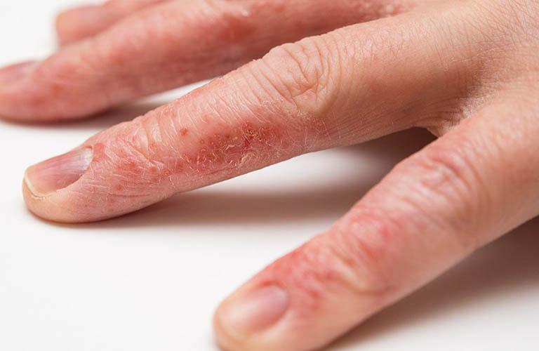 dấu hiệu bệnh chàm tay