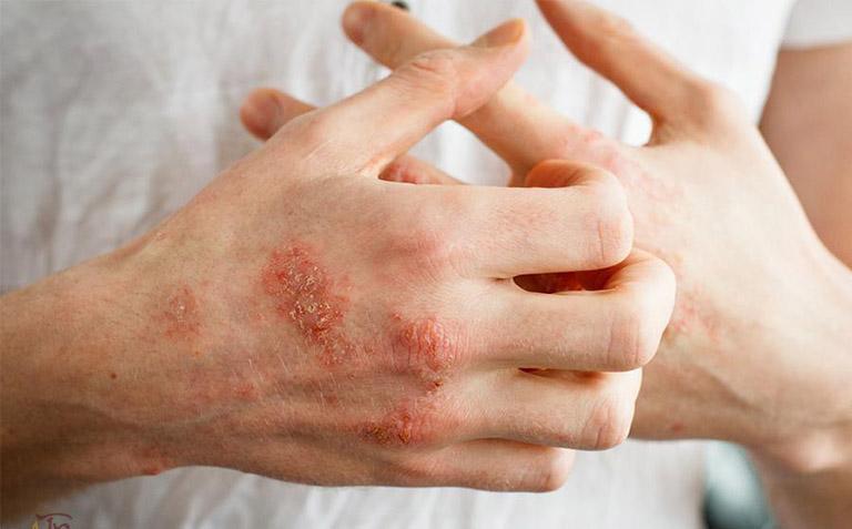 Cách trị bệnh chàm tay