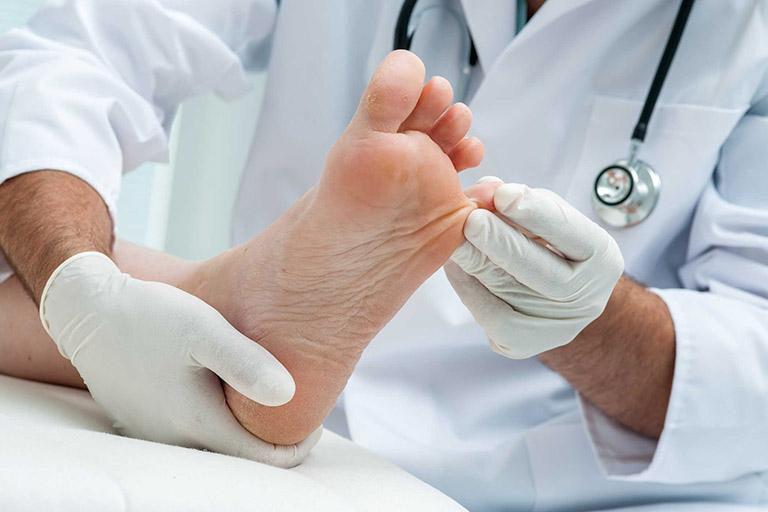 chân bị nổi mẩn đỏ và ngứa