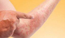 Triệu chứng của bệnh phong ngứa