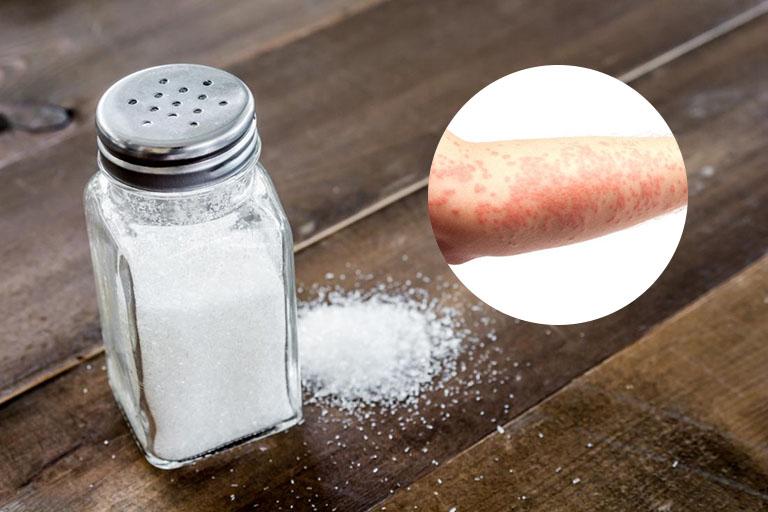 chữa mề đay bằng muối