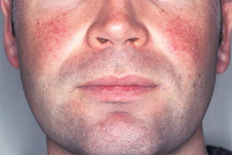Sử dụng sản phẩm chăm sóc da mặt kém chất lượng hoặc quá lạm dụng mỹ phẩm có thể dẫn đến tình trạng nổi mẩn đỏ trên da mặt