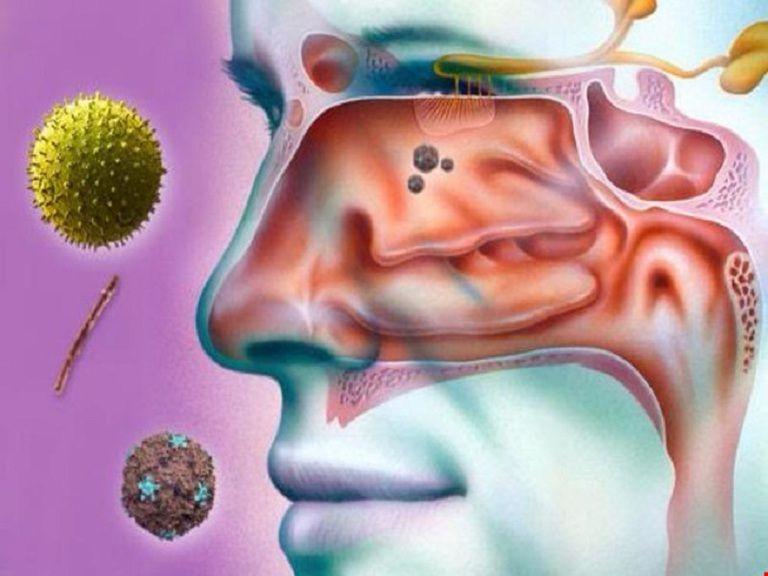Vi khuẩn, nấm là một trong những nguyên nhân chính gây viêm xoang