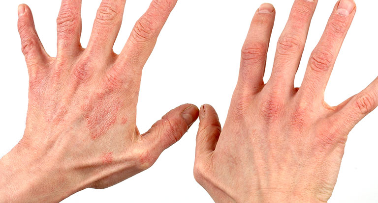 Nổi chấm đỏ trên da và không ngứa