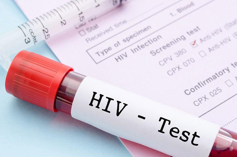 hiv có nổi mề đay không