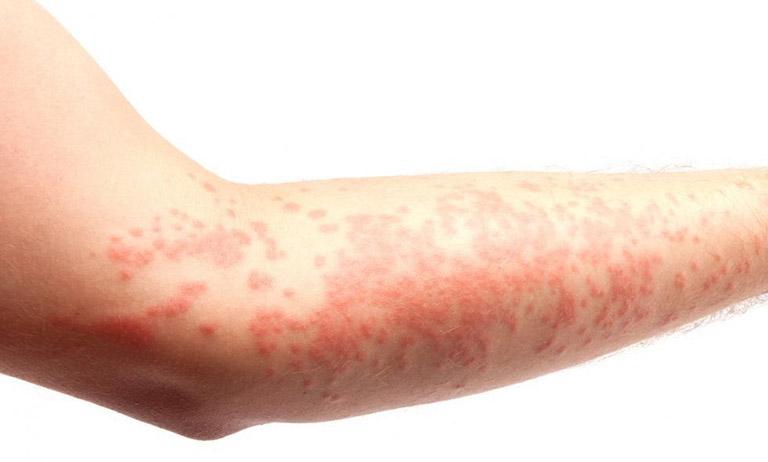 nổi chấm đỏ trên da và ngứa