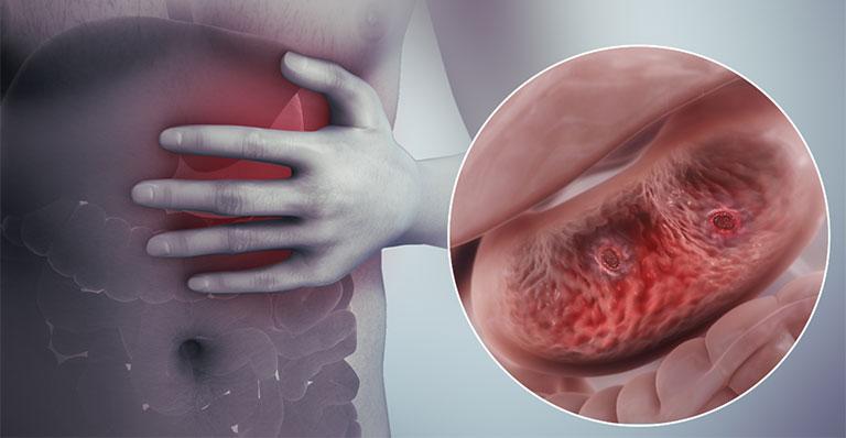 sôi bụng đau dạ dày biểu hiện như thế nào
