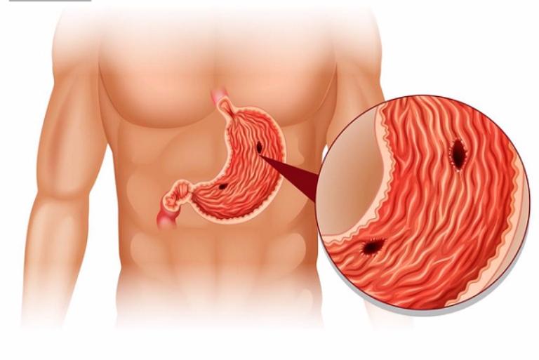 Thủng dạ dày là biến chứng nguy hiểm của căn bệnh đau dạ dày