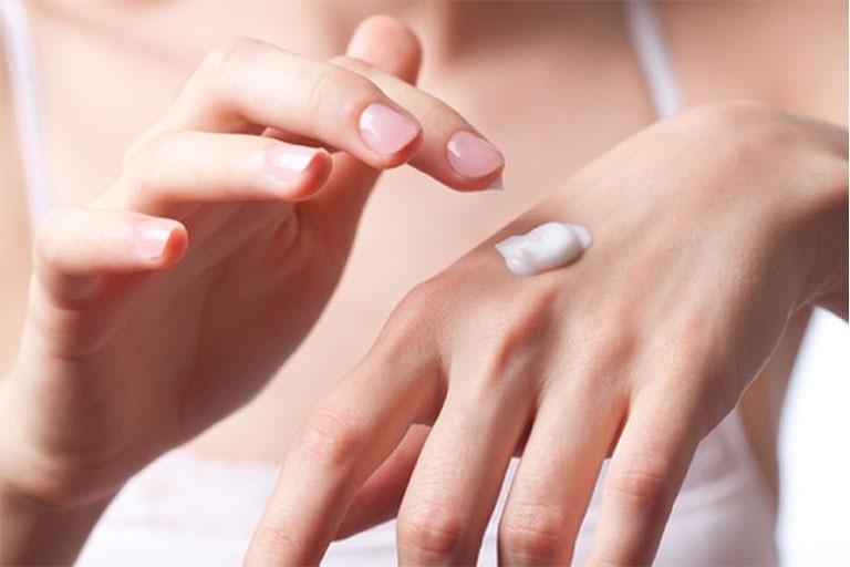 Sử dụng thuốc bôi tại chỗ để cải thiện các triệu chứng khó chịu do bệnh gây ra