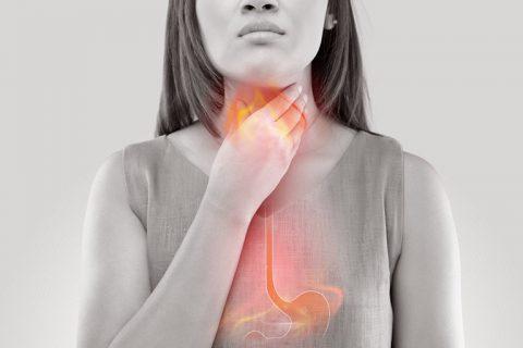 Viêm họng do trào ngược dạ dày thực quản là chứng bệnh phổ biến