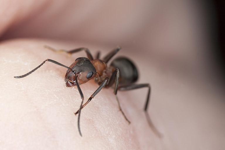 trẻ bị nổi mẩn đỏ như muỗi đốt ở chân