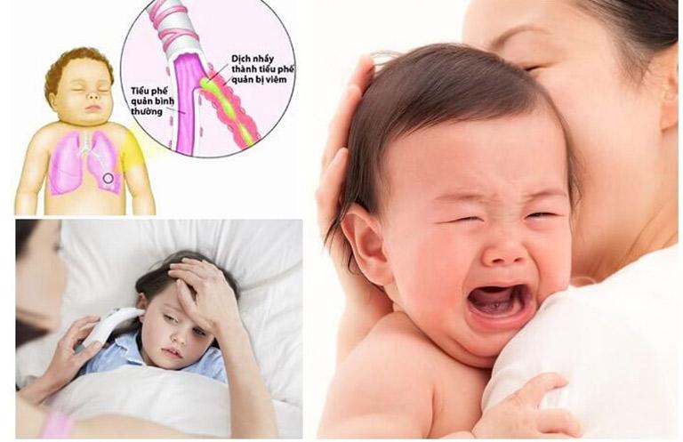 Trẻ em là đối tượng dễ mắc bệnh viêm phế quản