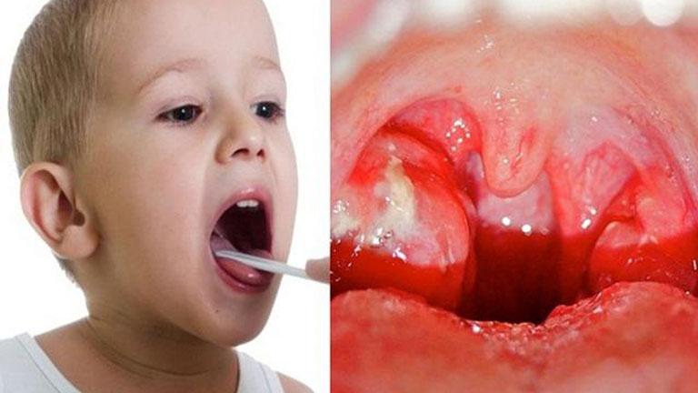 Viêm amidan ở trẻ là căn bệnh nguy hiểm, cần kịp thời điều trị