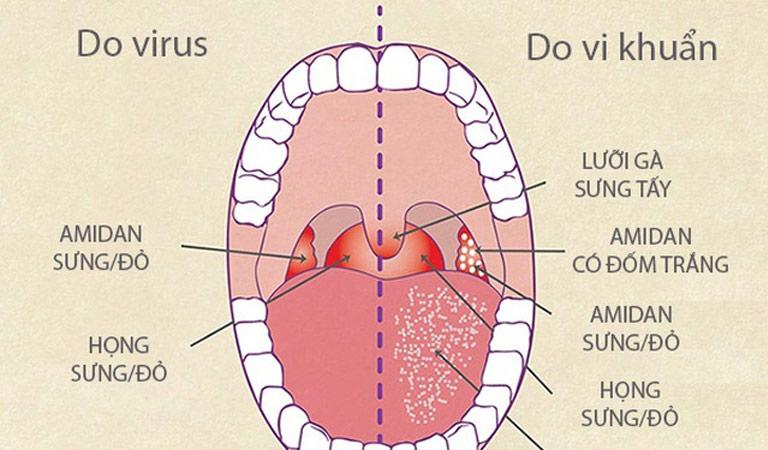 Dấu hiệu nhận biết viêm họng do virus gây ra