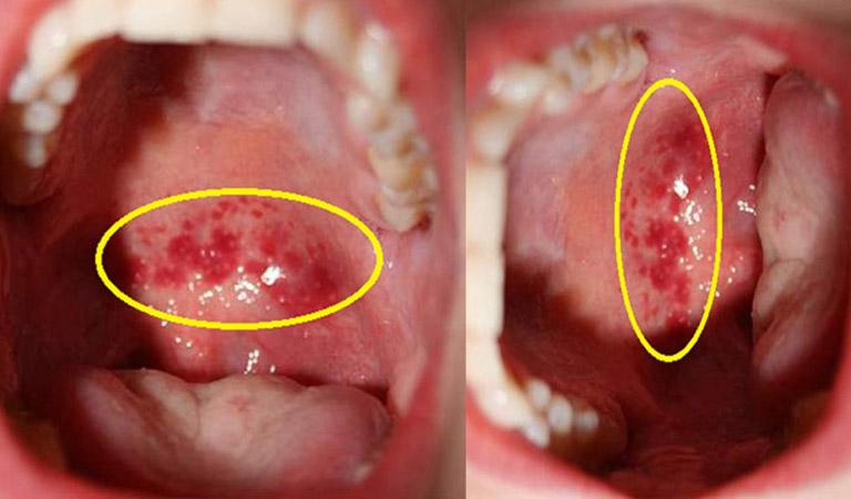 Vùng họng xuất hiện các hạt đỏ là triệu chứng điển hình của viêm họng mãn tính
