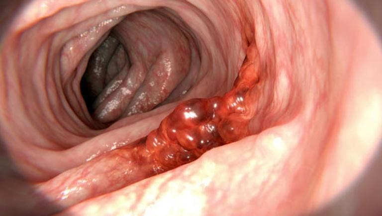 Ung thư dạ dày là biến chứng rất nguy hiểm của căn bệnh đau dạ dày