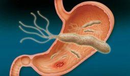 Vi khuẩn HP là gì ? Điều trị như thế nào hiệu quả ?