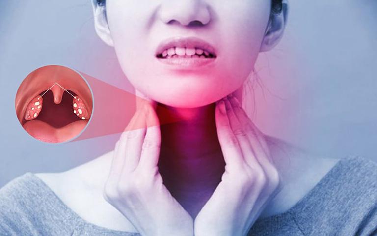 Viêm amidan có thể hình thành do nhiều nguyên nhân