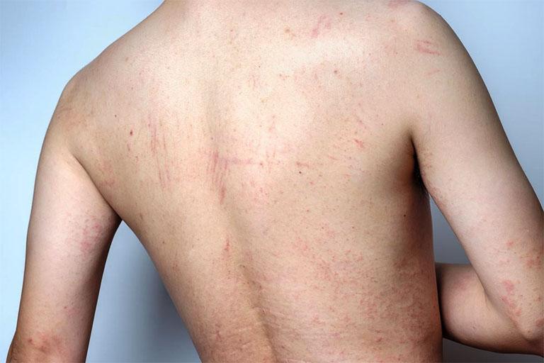 Bệnh viêm da có chữa khỏi hoàn toàn không? Làm sao để giảm nguy cơ tái phát?