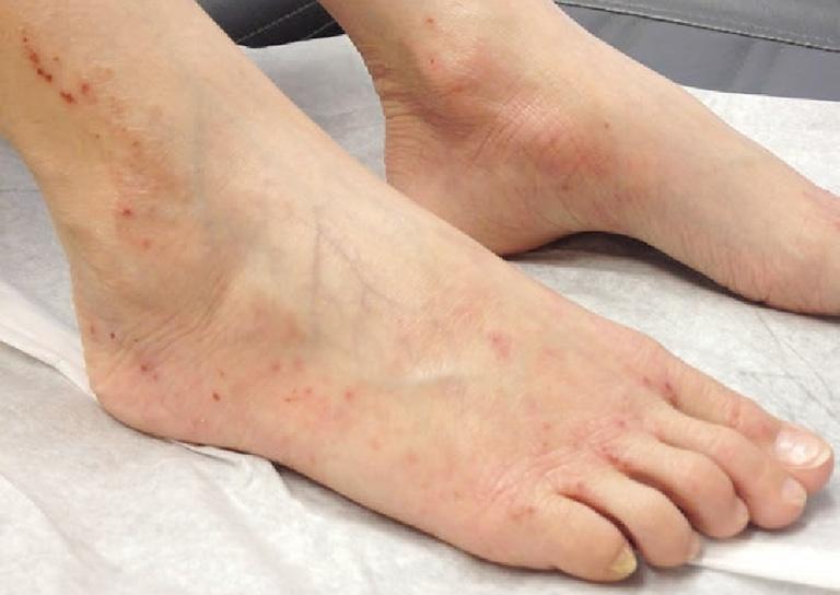 Viêm da cơ địa gây tổn thương ở chân là trường hợp xảy ra khá phổ biến