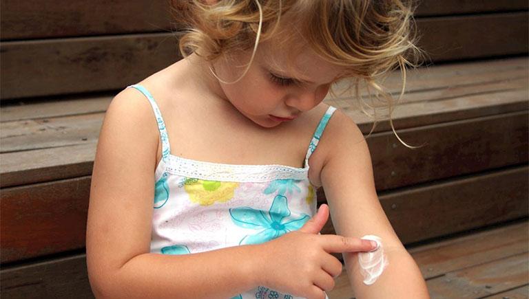 cách chữa bệnh viêm da ở trẻ em