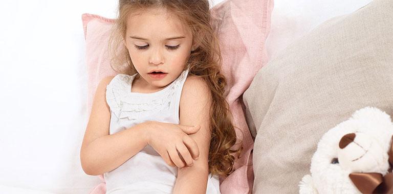 viêm da ở trẻ em có nguy hiểm không