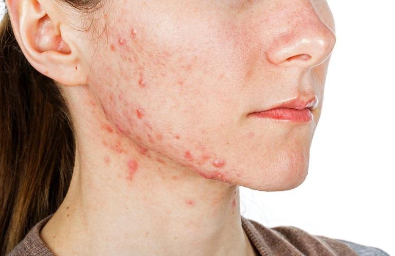 Viêm da tiếp xúc có nguy hiểm không