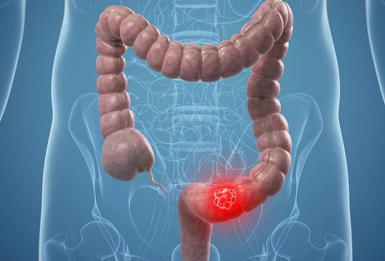 Bệnh viêm đại tràng co thắt gây ung thư đại tràng khi không được điều trị