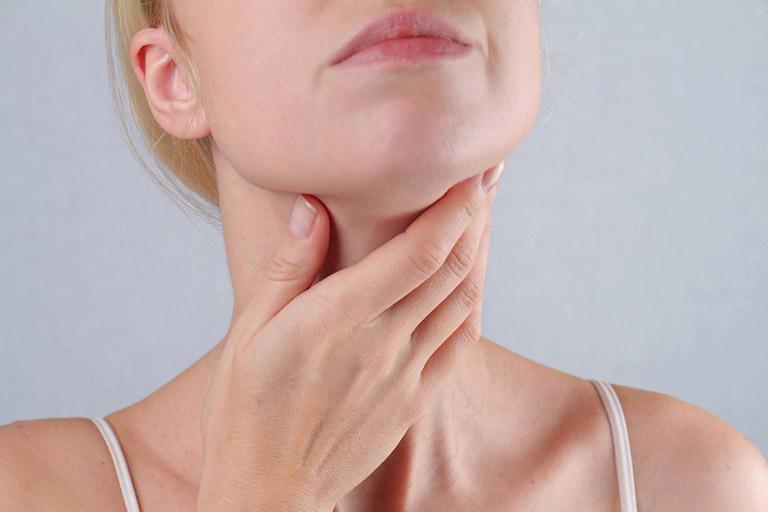 Viêm họng hạt có mủ là tình trạng nặng của viêm họng