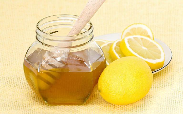 Sử dụng mật ong - chanh để điều trị bệnh viêm họng hạt có mủ hiệu quả