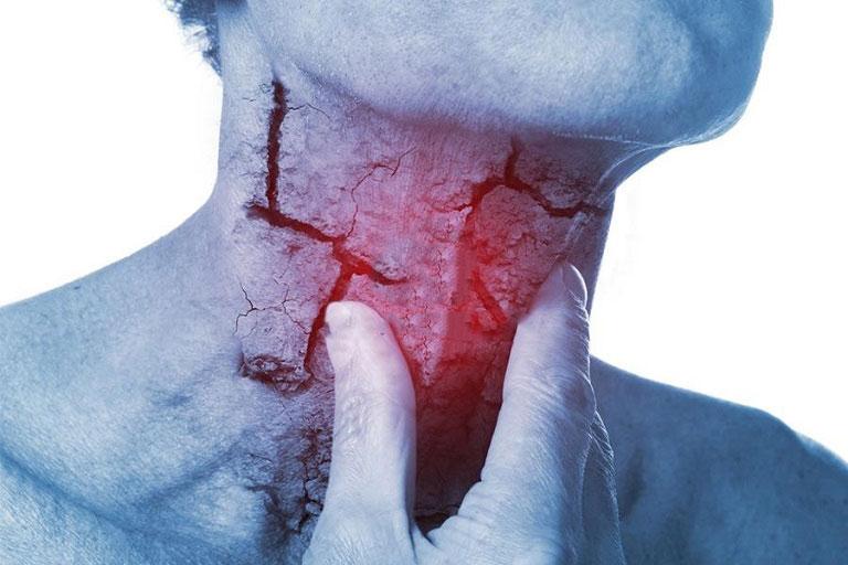 Viêm họng hạt tăng nguy cơ ung thư vòm họng