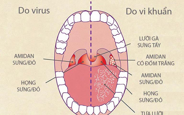 Hai căn bệnh này đều do nguyên nhân chính là vi khuẩn và virus gây ra tuy nhiên mức độ lây lan của từng bệnh lại có sự khác biệt
