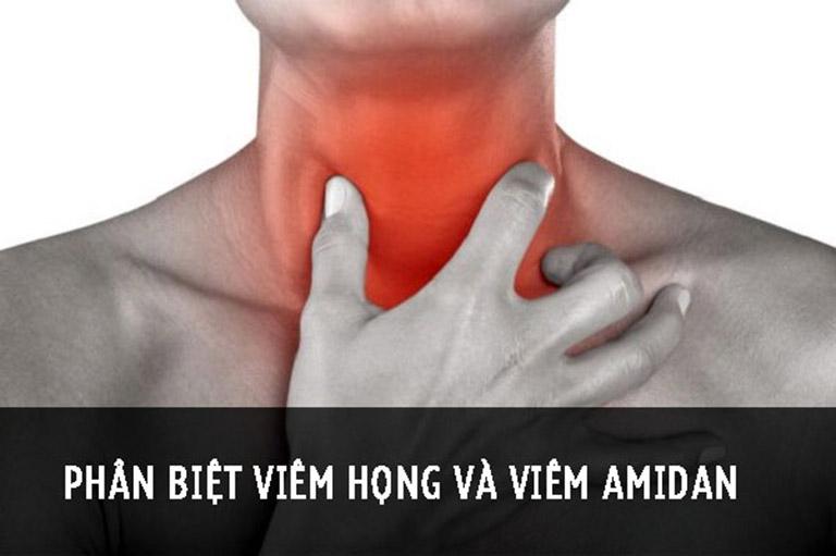 Phân biệt viêm họng và viêm amidan để sớm tìm đúng phương pháp chữa bệnh
