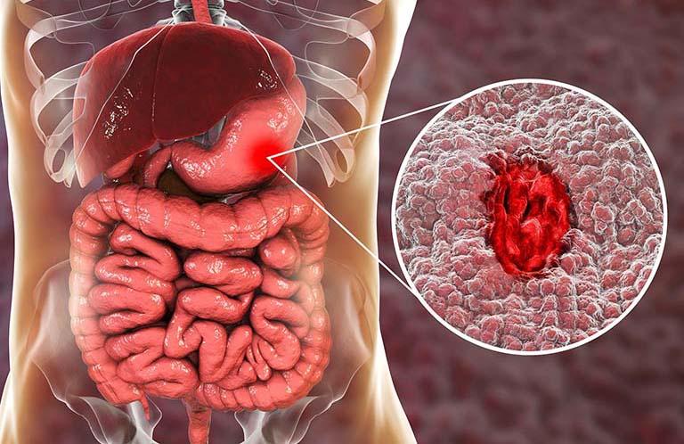 viêm loét dạ dày tá tràng biểu hiện