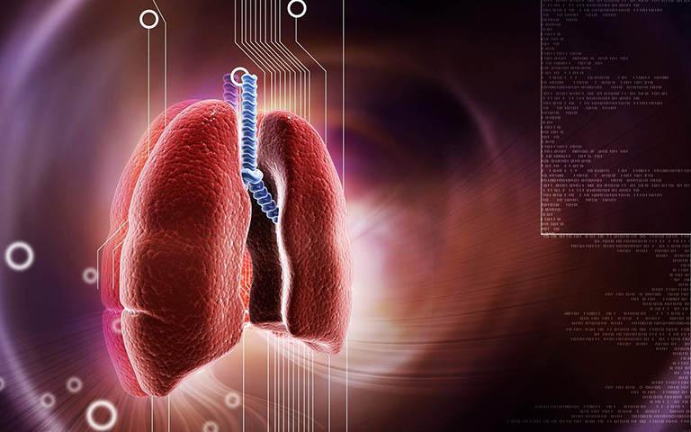 Viêm phế quản cấp là tình trạng tổn thương niêm mạc ống phế quản - phối