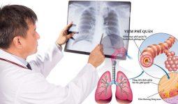 Chẩn đoán bệnh viêm phế quản dạng hen