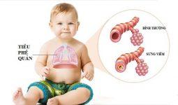 Viêm phế quản ở trẻ sơ sinh là gì?