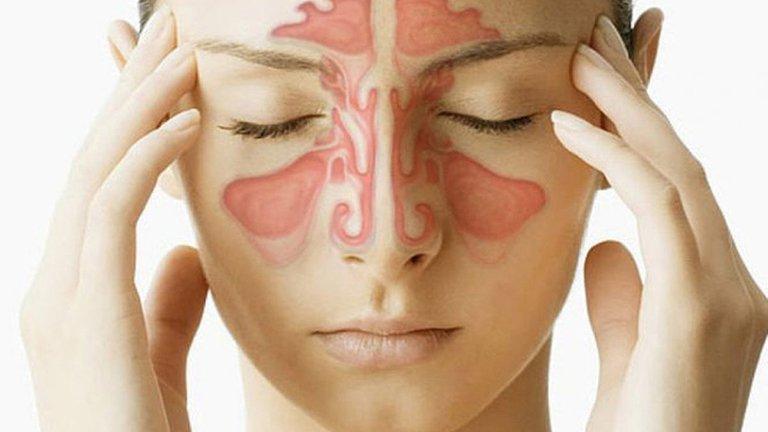 Viêm xoang gây nhiều triệu chứng khó chịu làm ảnh hưởng nghiêm trọng tới sức khỏe