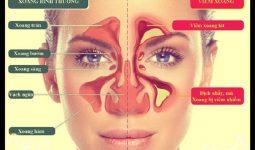 Viêm xoang sàng trước, sau là một trong những chứng viêm xoang thường gặp nhất về bệnh lý đường hô hấp