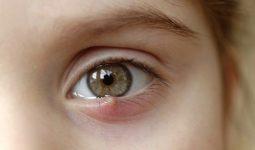 Viêm xoang ảnh hưởng đến mắt như thế nào? Nguy hiểm không?