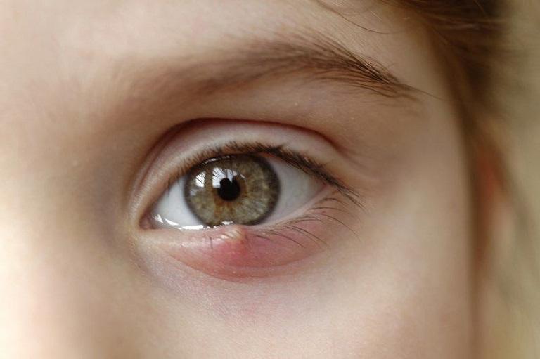 Áp xe mi mắt dưới do biến chứng viêm xoang
